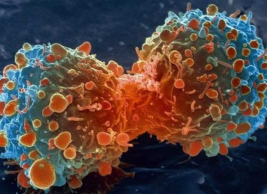 Según estudios estadounidenses dos de cada tres casos de cáncer tienen como influencia la mala suerte.