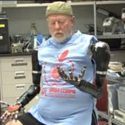 Primer implante de dos brazos robóticos a nivel del hombro