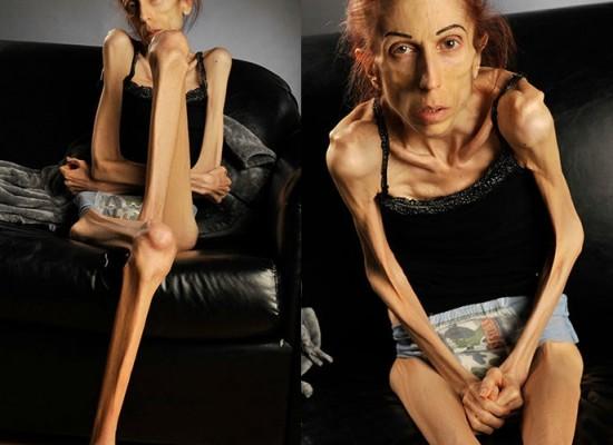 Actriz pide ayuda en Internet para salvar su vida de la anorexia